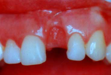 Gum Recession - Thin, Fragile Tissues