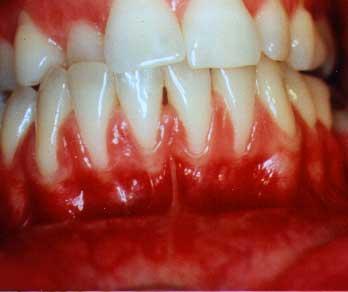 Gum Recession - Thin, Fragile Tissues